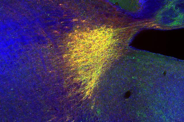Голубое пятно в мозге мыши; красным окрашены клетки, в которых вырабатывается норадреналин. (Фото: Akiko Wagatsuma, Tonegawa Lab.)