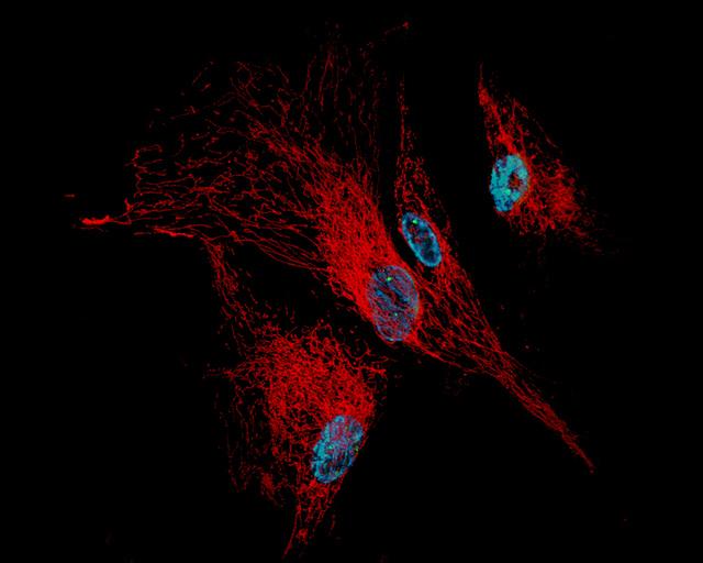 Фибробласты человека с признаками старения: в ядерной ДНК (синим) появляются повреждённые участки (зелёные точки); митохондрии (красным) складывают в разветвлённую сетчатую структуру. (Фото Glyn Nelson / Flickr.com.)