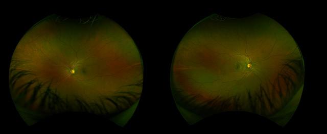 Причину дислексии нашли в симметричных глазах | Наука и жизнь