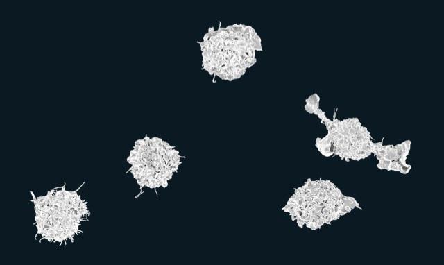 Макрофаги под электронным микроскопом. (Фото: NIAID / Flickr.com.)
