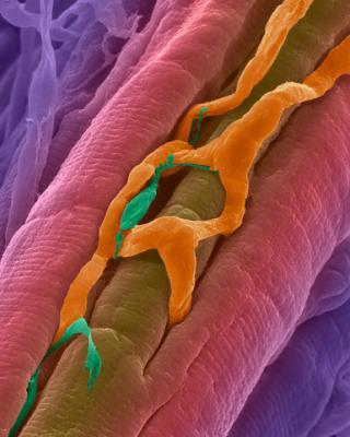 Волокна сердечной мышцы с капилляром и возбудительным волокном Пуркинье, передающим сократительный сигнал. (Фото Dennis Kunkel Microscopy, Inc. / Visuals Unlimited / Corbis.)