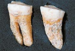 На зубах неандертальца, найденного недавно в одной из пещер Испании, видны следы усиленного пользования зубочистками.