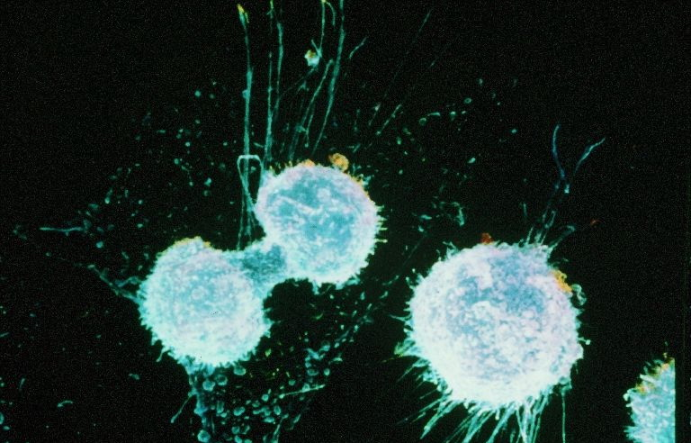 От чего зависит вероятность рака груди | Наука и жизнь