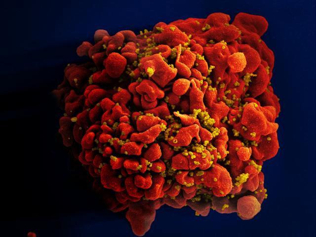 Инфицированная ВИЧ Т-клетка с частицами вируса на поверхности. (Фото: NIAID / Flickr.com.)