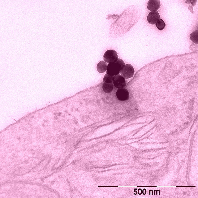 Наночастицы из оксида железа на поверхности клетки. (Фото Empa Pictures / Flickr.com.)