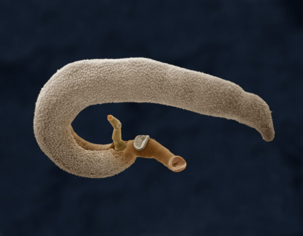 Паразитический червь шистосома Schistosoma mansoni. (Фото Dr. Richard Kessel & Dr. Gene Shih / Visuals Unlimited / Corbis.)