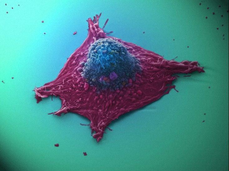 Клетка рака лёгких. (Фото Wellcome Images / Flickr.com.)