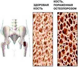 Борьба с остеопорозом продолжается - новая форма витамина D.