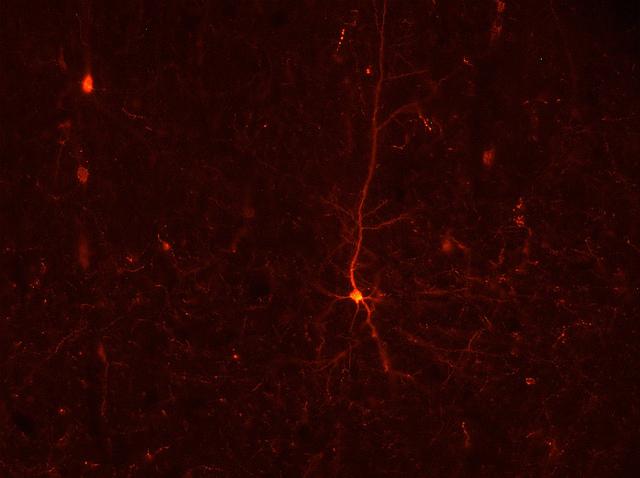 Нейрон моторной коры мозга крысы. (Фото: Siobhan Robinson / Flickr.co.)