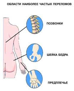 Последствия остеопороза- переломы позвоночника, шейки бедра и