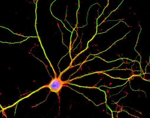 Один из нейронов мозга: зеленым окрашены отростки-дендриты, красные точки – дендритные шипики, места потенциальных межнейронных контактов. (Фото: Shelley Halpain / UC San Diego)