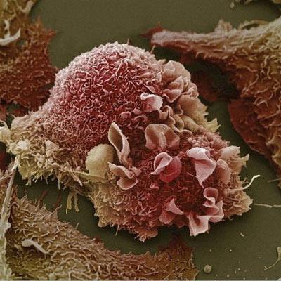 Бороться с раком помогут «наногантели»