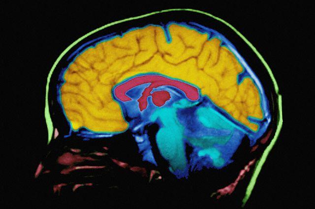 Один из вариантов МРТ-сканирования мозга (Фото Allen Bell / Corbis.)