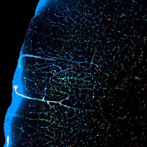 Каналы мусороуборочной «глимфатической» системы в мозге мыши. (Фото University of Rochester Medical Center.)