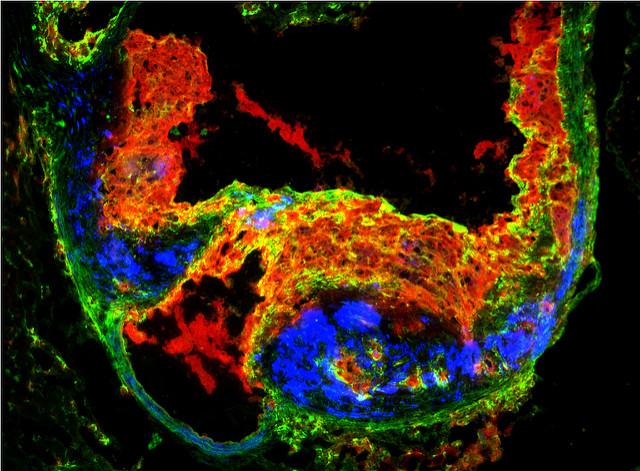 Иммунитет против атеросклероза | Наука и жизнь