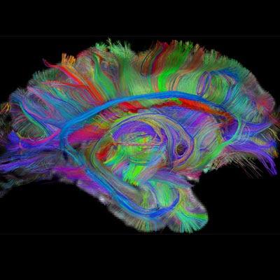 Как мозг отличает виденное от невиденного