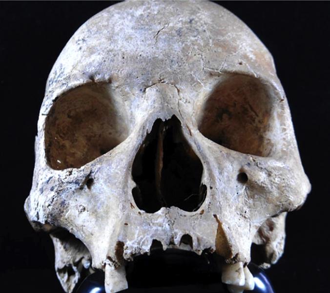 Череп средневековой жительницы Восточной Англии, болевшей лепрой. (Фото: Dr. Sarah Inskip / Cambridge University.)