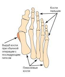 Рожа на ноге лечение народными средствами красной тряпкой