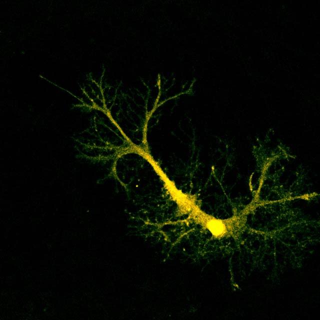 Астроцит из гиппокампа. (Фото: Patrik Hollos / Flickr.com)