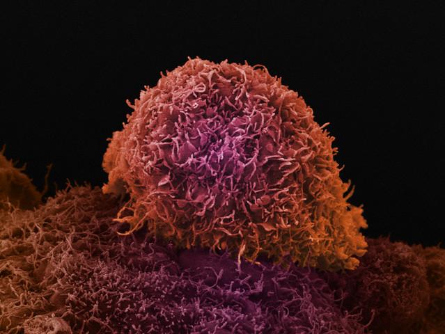 Как рак выбирает место для метастаза