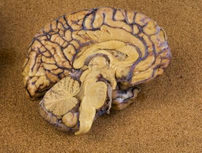 мозг в разрезе фото