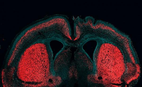 фото эмбриона человека в 8 недель