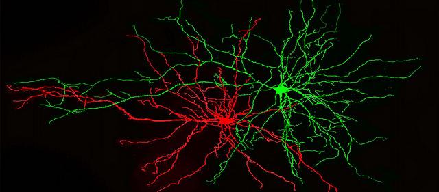 Нейроны миндалевидного тела – центра эмоций. (Фото Dept of Brain and Cognitive Sciences MIT / / Flickr.com.)