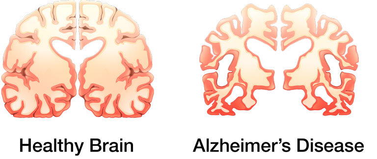 taking a look at alzheimers disease Alzheimer's is a neurodegenerative disorder that develops gradually and gets progressively worse over time it is known to account for over 60% of all cases of dementia in the advanced stages of the disease, people exhibit loss of bodily functions alongside other symptoms, which finally leads to their death.