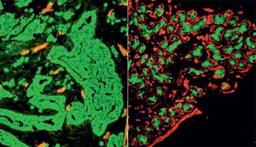 Мутации в раковых клетках подчиняются эволюционным законам