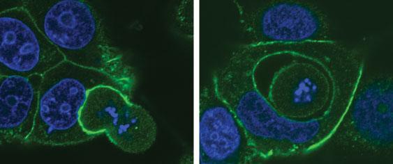 Одна клетка поглощает другую; слева – поглощенная клетка в специальном пузырьке-вакуоли внутри другой клетки. (Синим окрашена ядерная ДНК.) (Фото: Jo Durgan / Babraham Institute.)