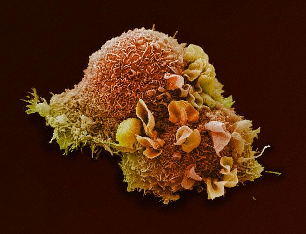 Когда доброкачественная опухоль становится злокачественной | Наука и жизнь