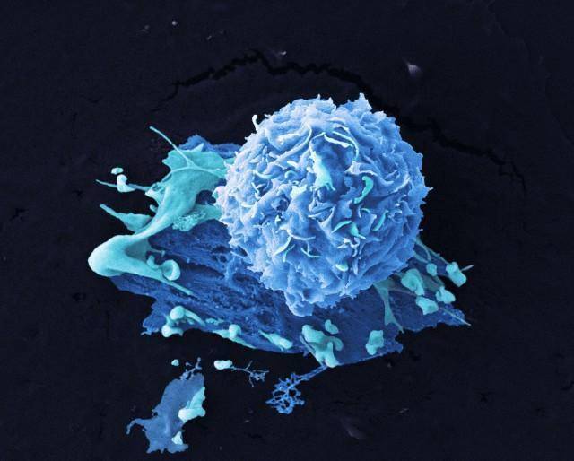 Рак груди: плохой жир и диагноз в анализе крови