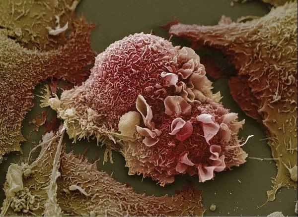 Раковые клетки. (Фото: MBBS Study Stuff / Flickr.com.)