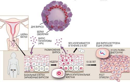 Вирус папилломы (HPV) состоит из круговой молекулы ДНК в белковой.