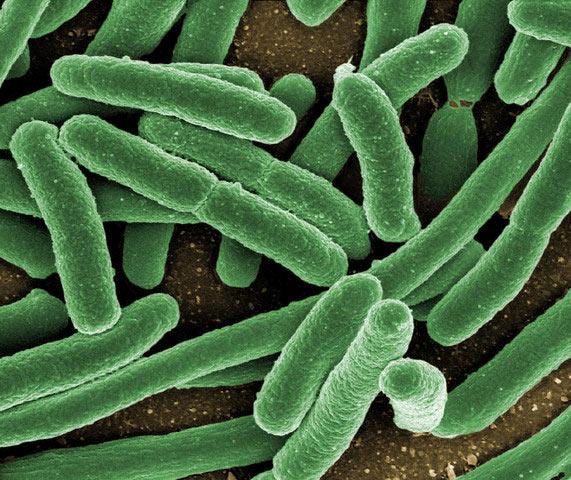 Кишечная палочка – одна из самых знаменитых бактерий, обитающая в кишечнике. (Фото Mediscan / Corbis.)
