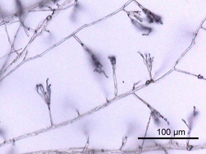 Гифы гриба из рода пенициллов. (Фото: Wikipedia / Y_tambe.)