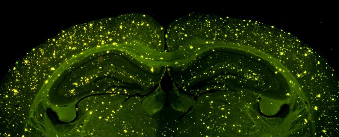 Отложения альцгеймерических белков в мозге мыши. (Фото Enrique T / Flickr.com)
