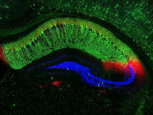 Срез через гиппокамп мыши; нейроны зоны CA1 окрашены зеленым, нейроны CA3 – синим. (Фото: NIH Image Gallery / Flickr.com)